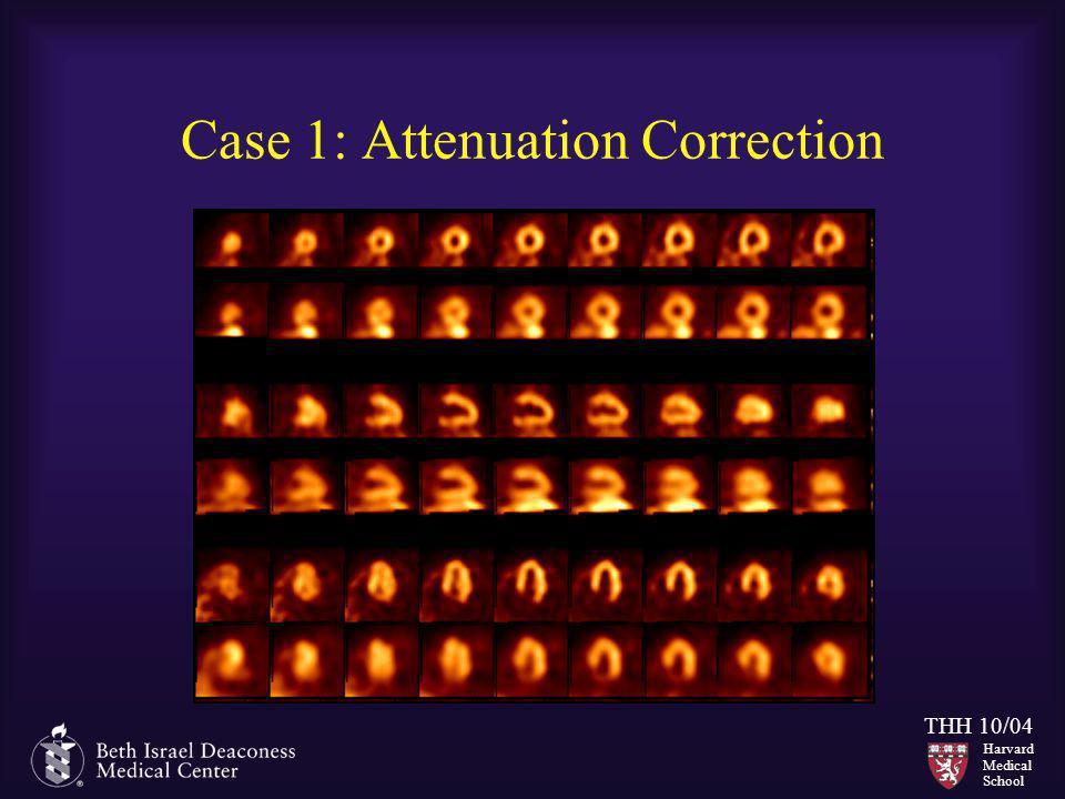 Harvard Medical School THH 10/04 Case 1: Attenuation Correction