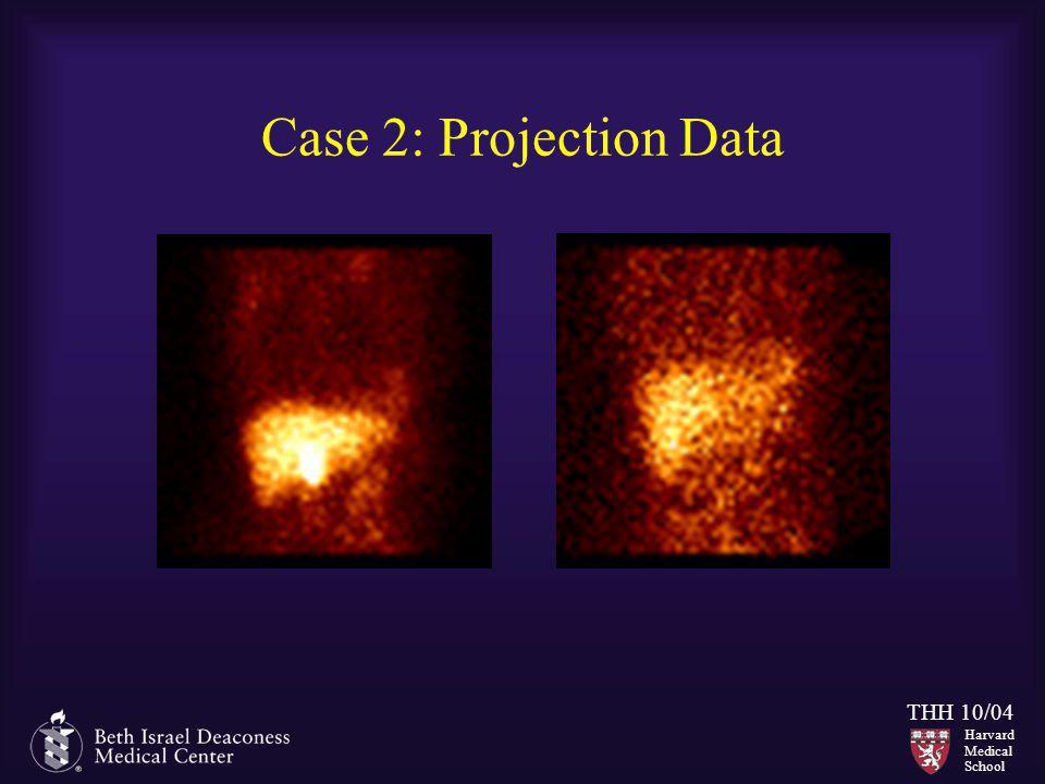 Harvard Medical School THH 10/04 Case 2: Projection Data