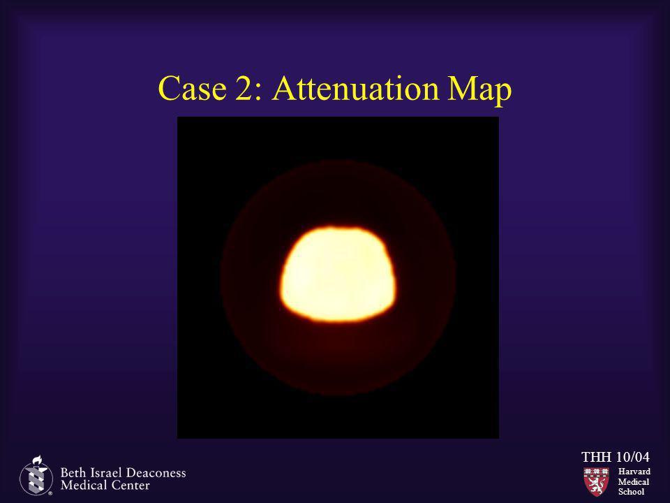 Harvard Medical School THH 10/04 Case 2: Attenuation Map