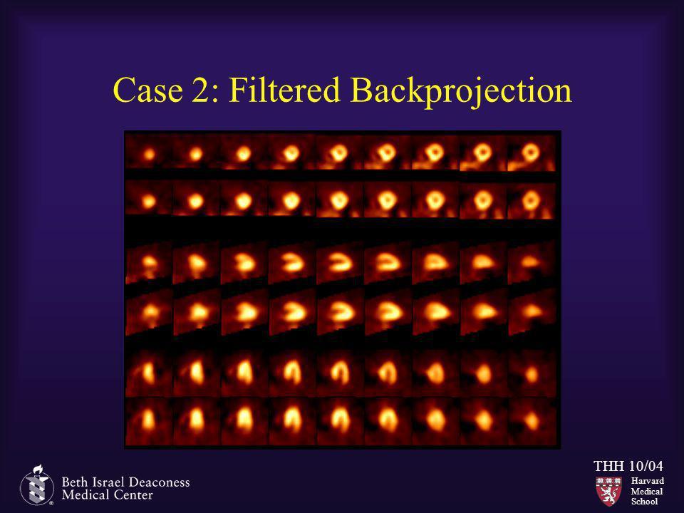 Harvard Medical School THH 10/04 Case 2: Filtered Backprojection