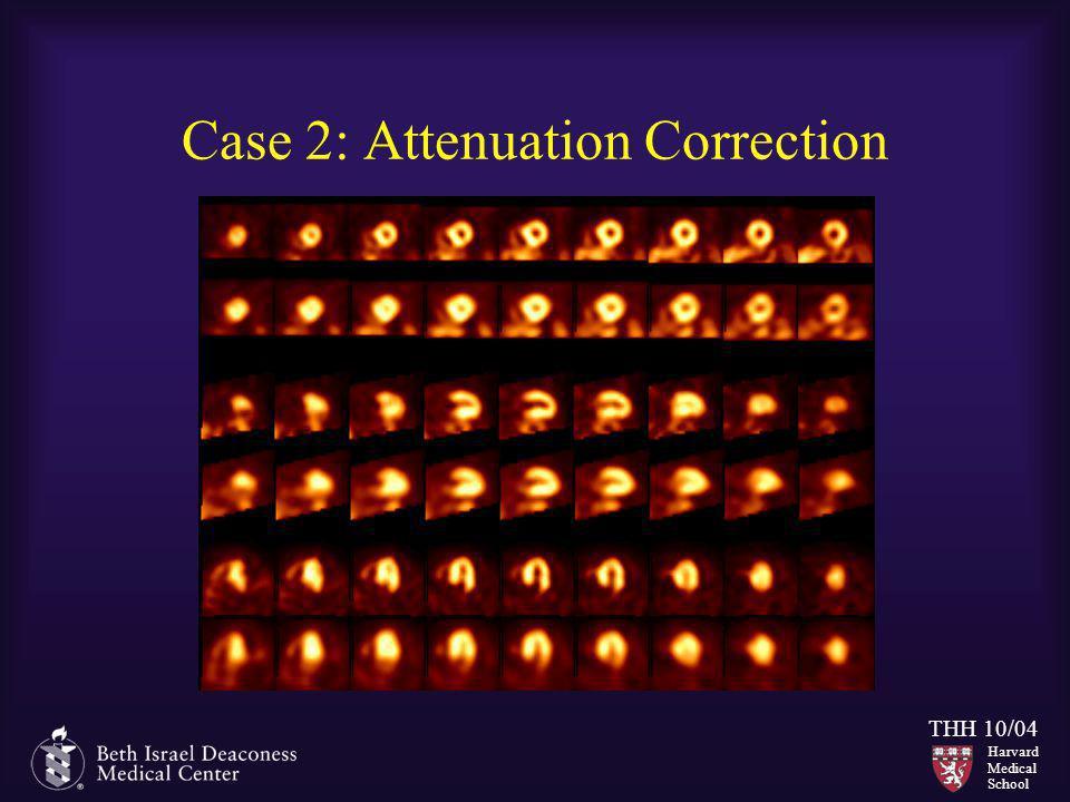 Harvard Medical School THH 10/04 Case 2: Attenuation Correction
