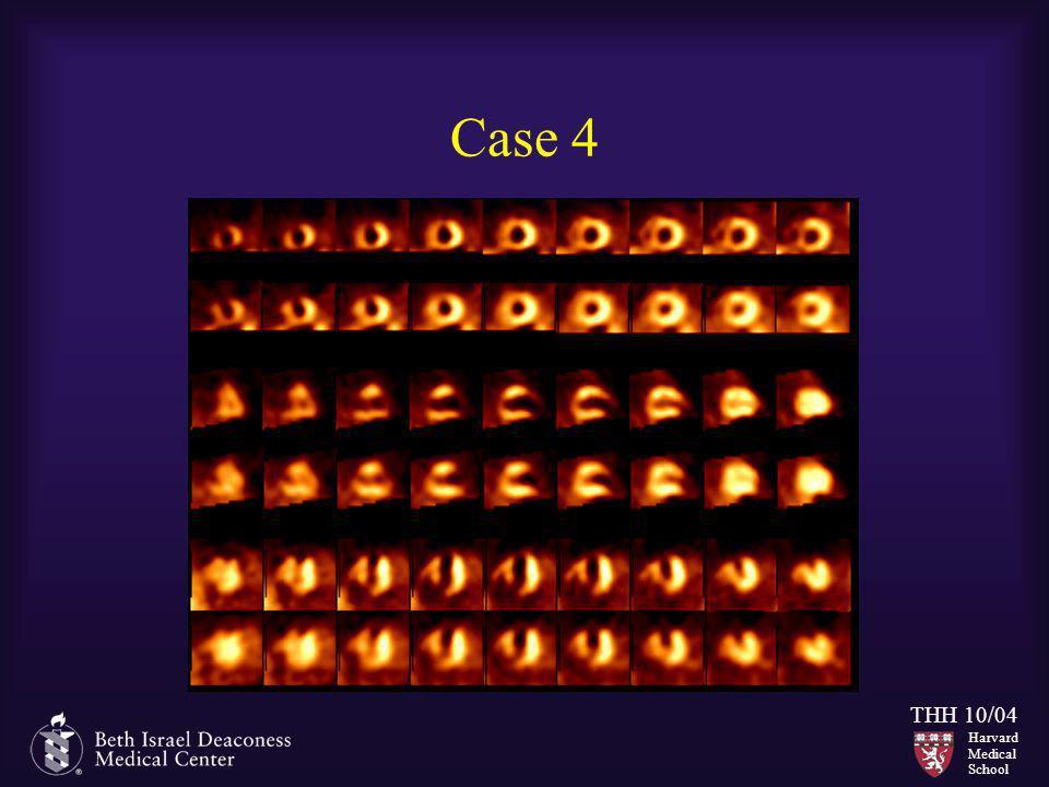 Harvard Medical School THH 10/04 Case 4