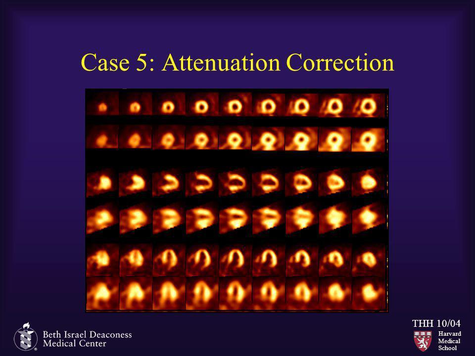 Harvard Medical School THH 10/04 Case 5: Attenuation Correction