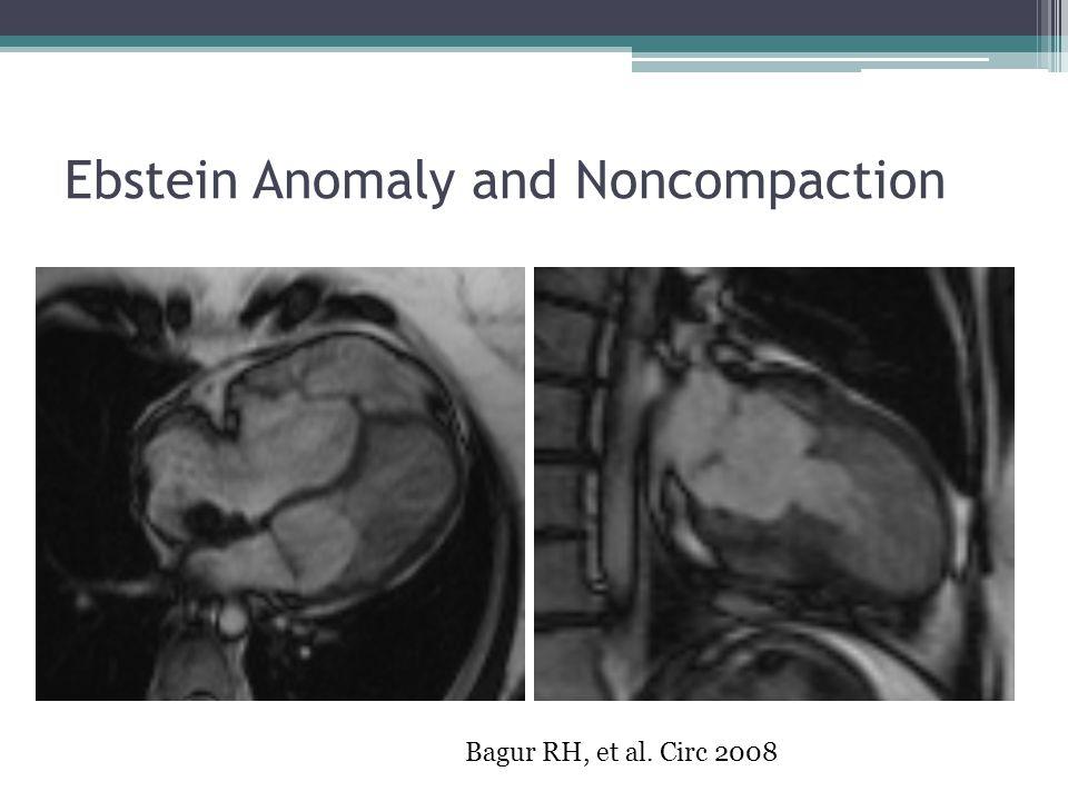 Ebstein Anomaly and Noncompaction Bagur RH, et al. Circ 2008