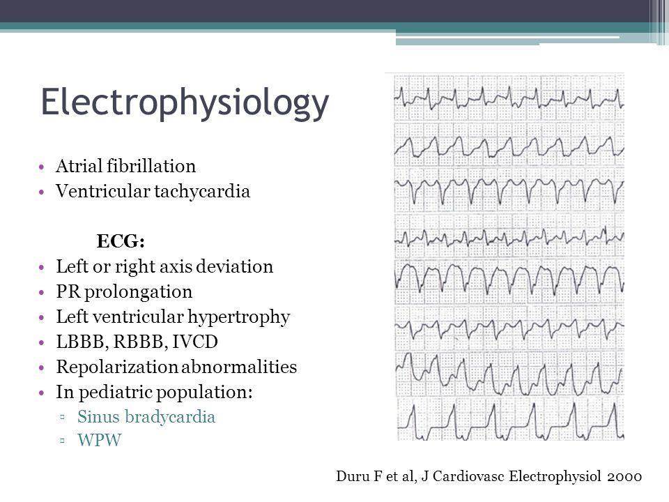 Electrophysiology Atrial fibrillation Ventricular tachycardia ECG: Left or right axis deviation PR prolongation Left ventricular hypertrophy LBBB, RBB