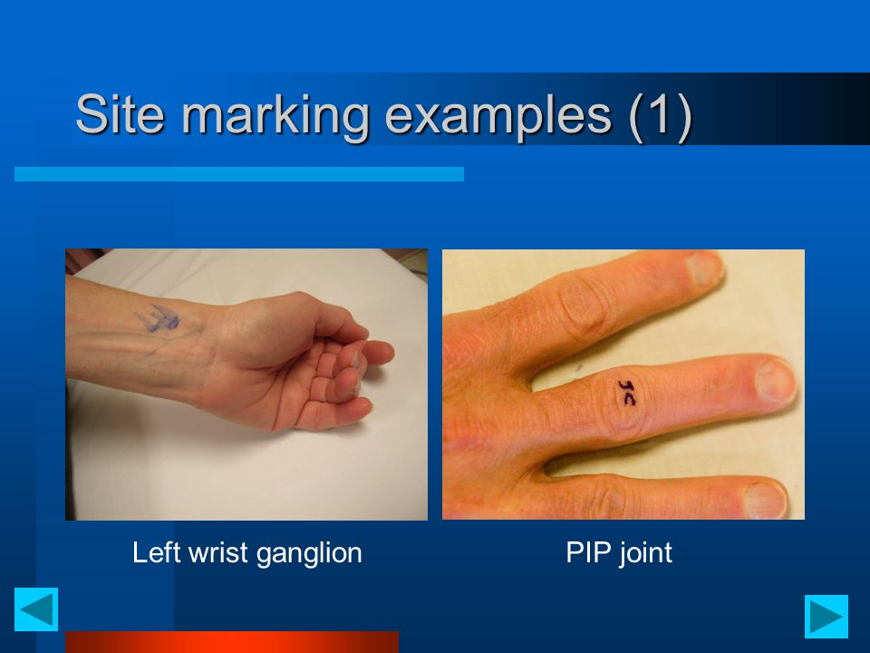 Site marking examples (1) Left wrist ganglionPIP joint