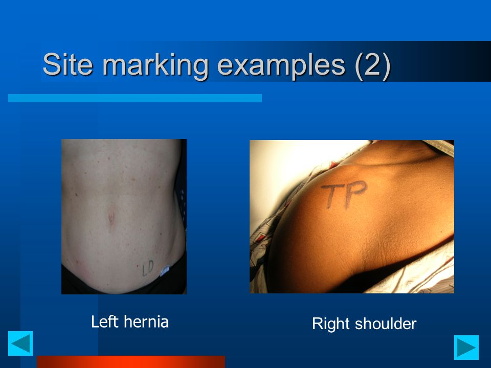 Site marking examples (2) Right shoulder Left hernia