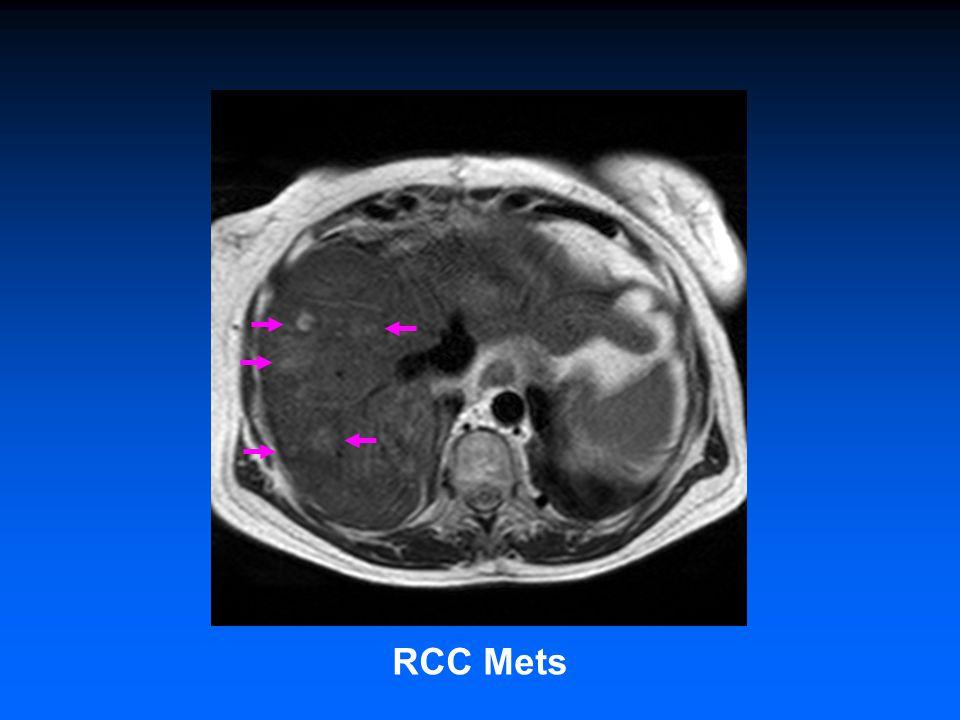 RCC Mets