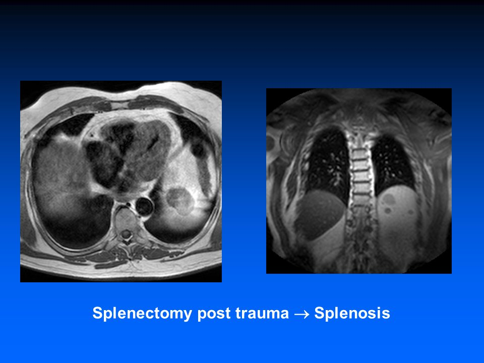 Splenectomy post trauma  Splenosis