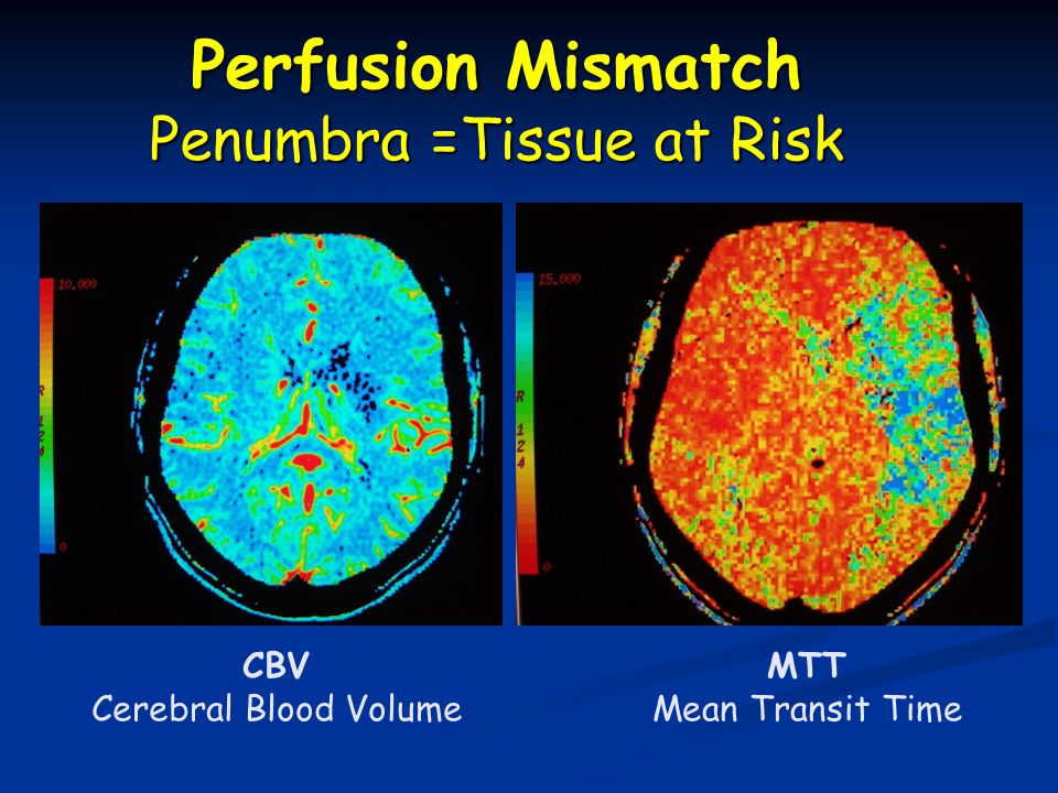 CBV Cerebral Blood Volume MTT Mean Transit Time Perfusion Mismatch Penumbra =Tissue at Risk