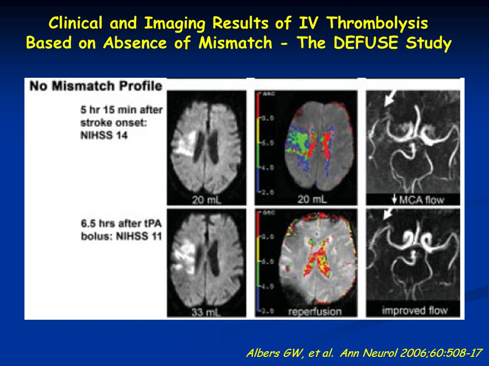 Clinical and Imaging Results of IV Thrombolysis Based on Absence of Mismatch - The DEFUSE Study Albers GW, et al.