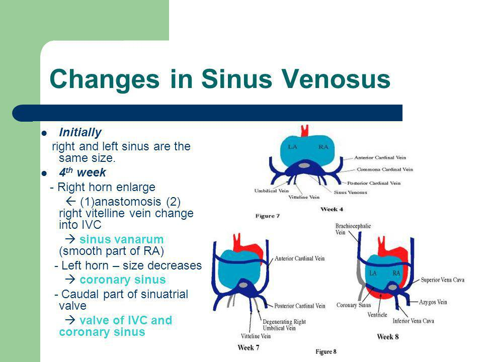Changes in Sinus Venosus Initially right and left sinus are the same size. 4 th week - Right horn enlarge  (1)anastomosis (2) right vitelline vein ch