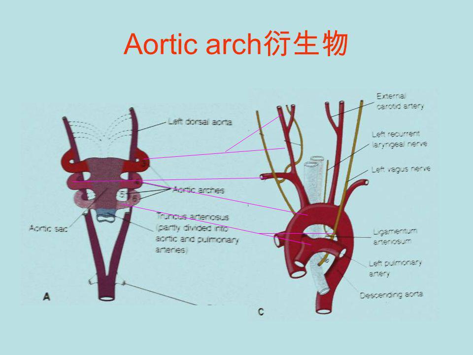 Aortic arch 衍生物