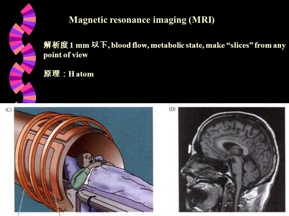 "Magnetic resonance imaging (MRI) 解析度 1 mm 以下, blood flow, metabolic state, make ""slices"" from any point of view 原理: H atom"