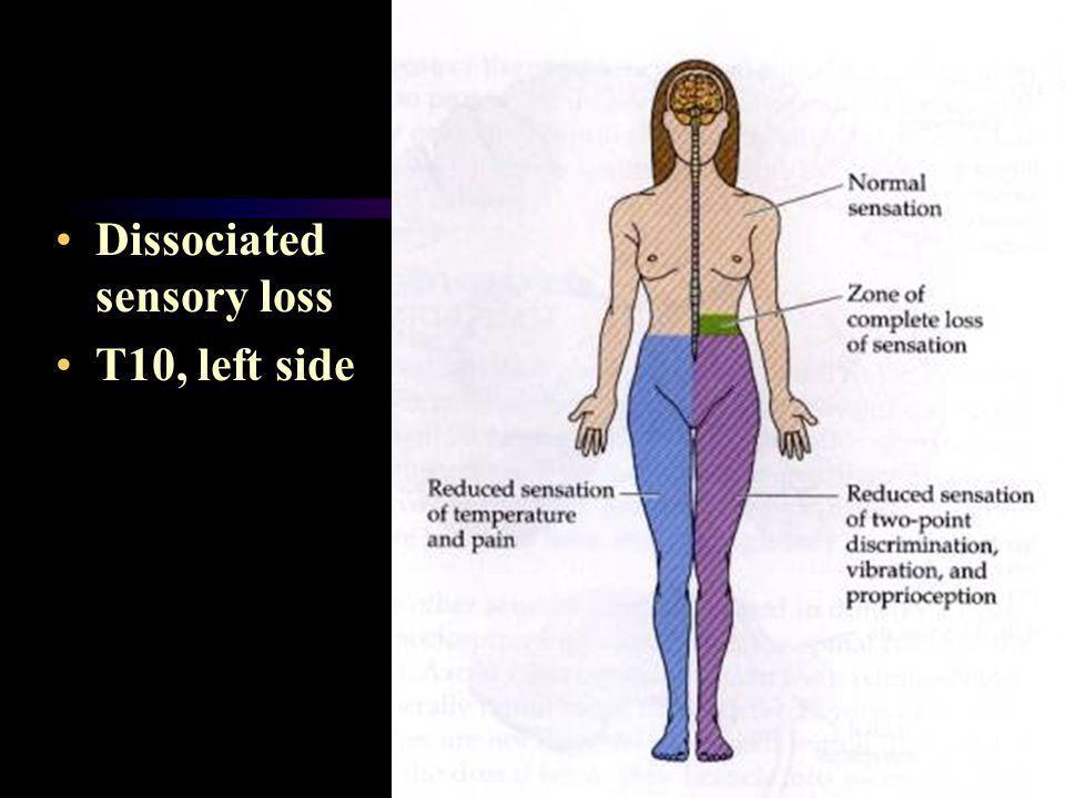 Dissociated sensory loss T10, left side