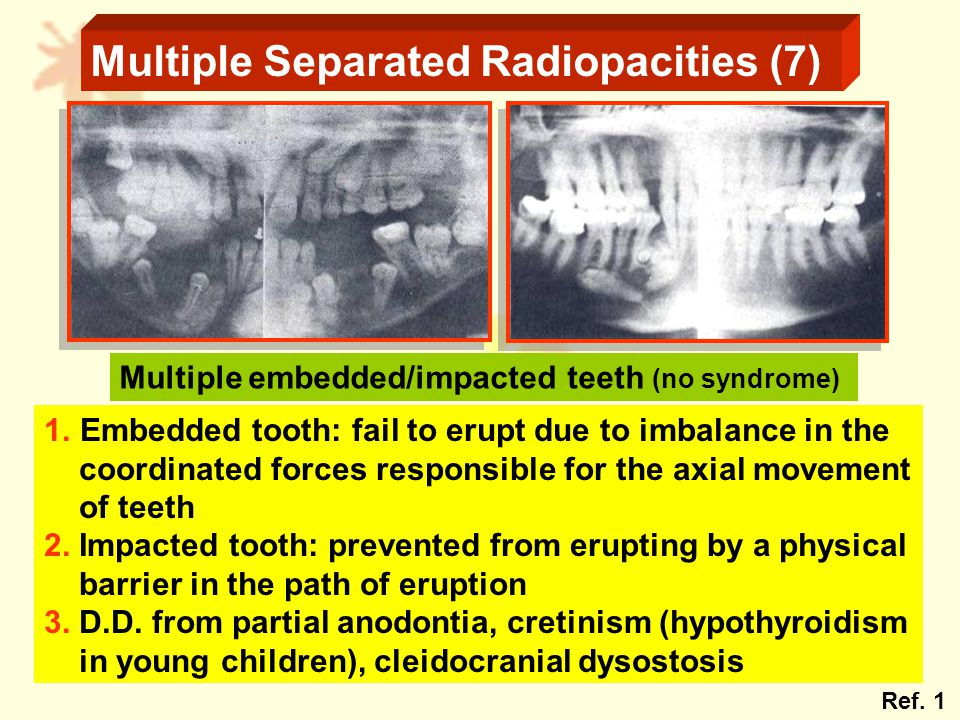 Multiple Separated Radiopacities (7) Multiple embedded/impacted teeth (no syndrome) 1.Embedded tooth: fail to erupt due to imbalance in the coordinated forces responsible for the axial movement of teeth 2.
