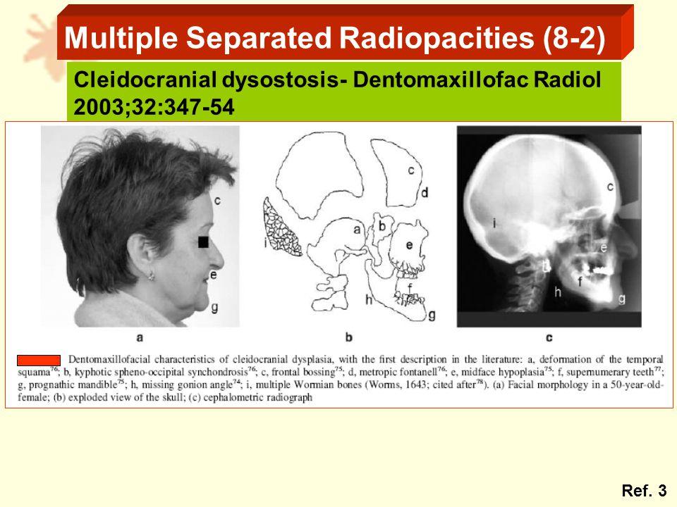 Multiple Separated Radiopacities (8-2) Cleidocranial dysostosis- Dentomaxillofac Radiol 2003;32:347-54 Ref.