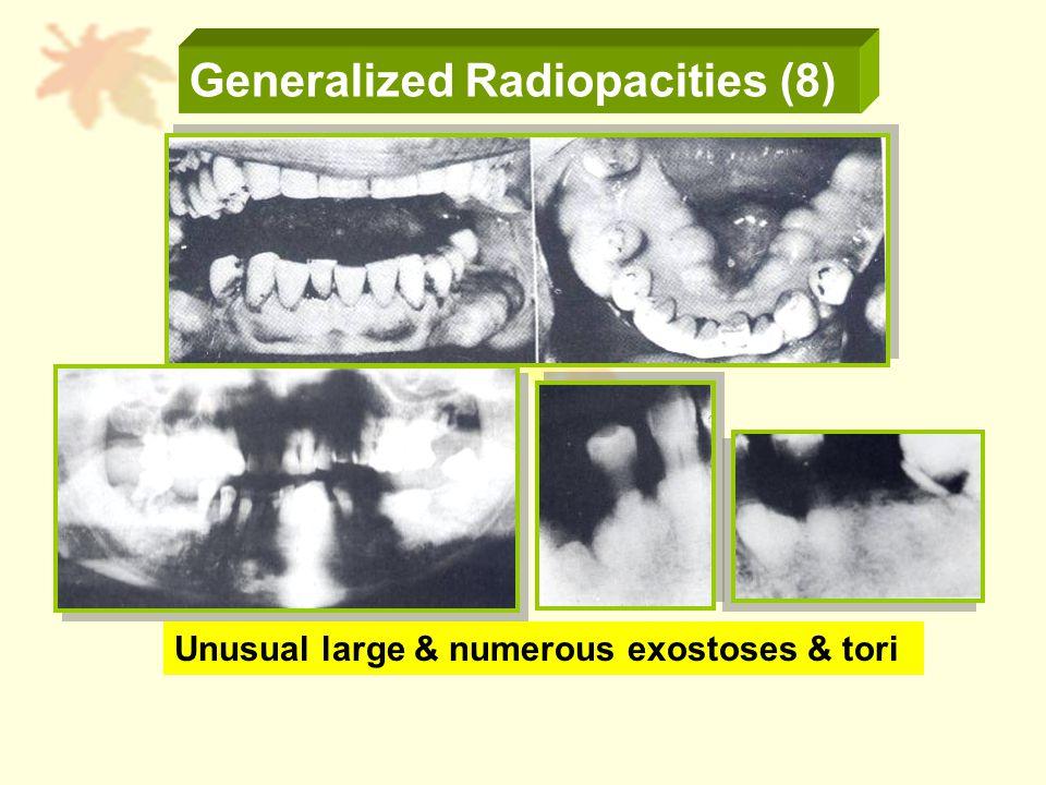 Generalized Radiopacities (8) Unusual large & numerous exostoses & tori