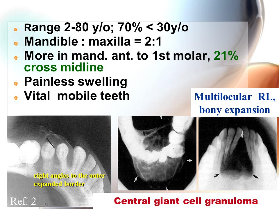 WenChen Wang  R ange 2-80 y/o; 70% < 30y/o  Mandible : maxilla = 2:1  More in mand. ant. to 1st molar, 21% cross midline  Painless swelling  Vita