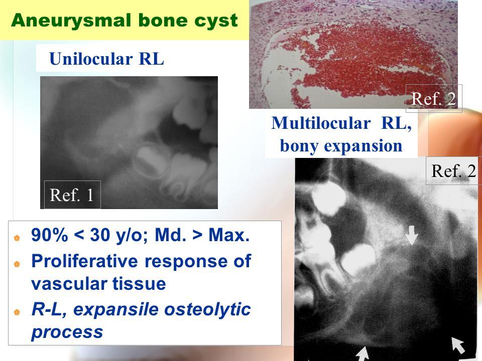 WenChen Wang Aneurysmal bone cyst Multilocular RL, bony expansion Unilocular RL  90% Max.  Proliferative response of vascular tissue  R-L, expansil