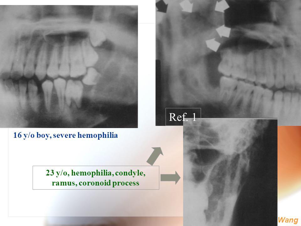 WenChen Wang 16 y/o boy, severe hemophilia 23 y/o, hemophilia, condyle, ramus, coronoid process Ref. 1