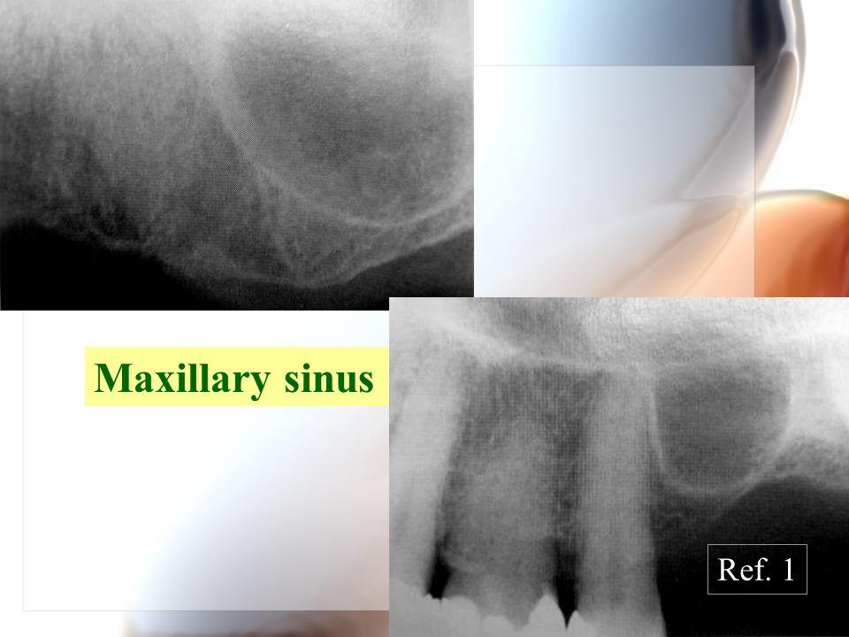 WenChen Wang Maxillary sinus Ref. 1