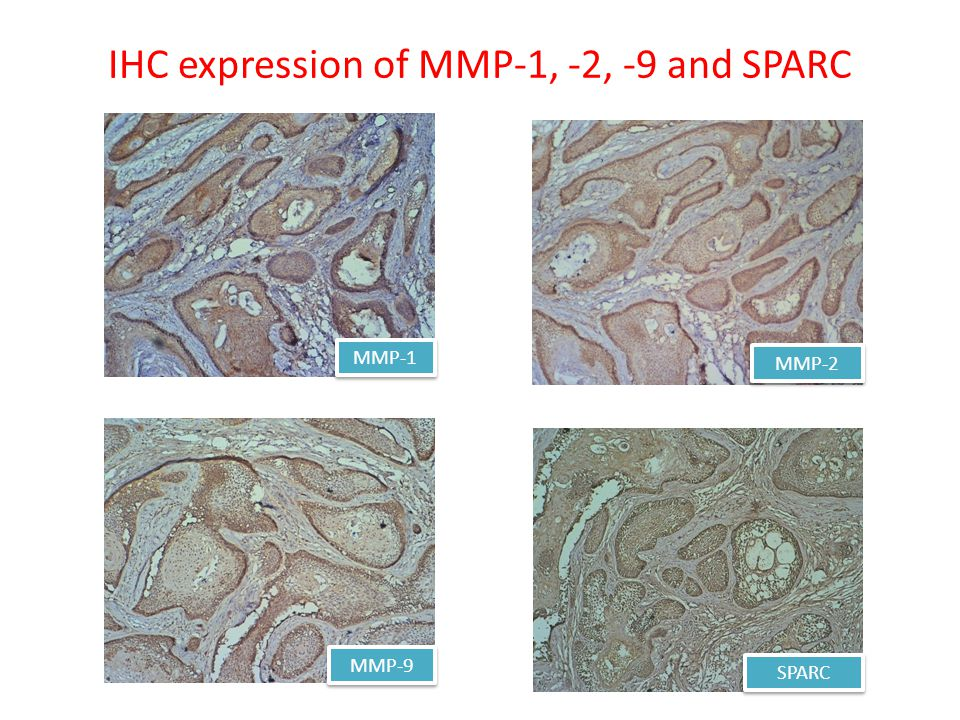 IHC expression of MMP-1, -2, -9 and SPARC MMP-1 MMP-2 MMP-9 SPARC
