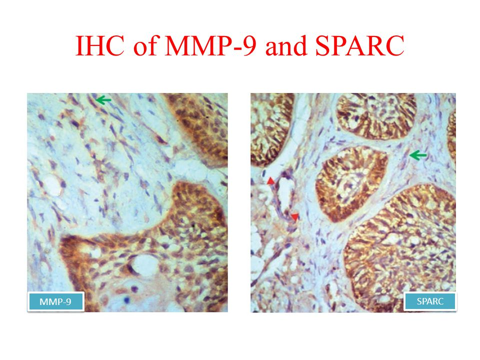 IHC of MMP-9 and SPARC MMP-9 SPARC