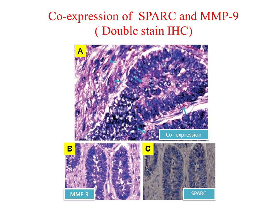 Co-expression of SPARC and MMP-9 ( Double stain IHC) MMP-9 SPARC Co- expression A BC