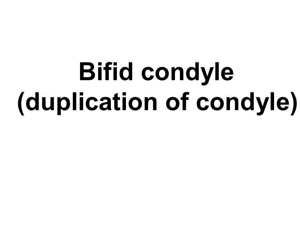 Bifid condyle (duplication of condyle)