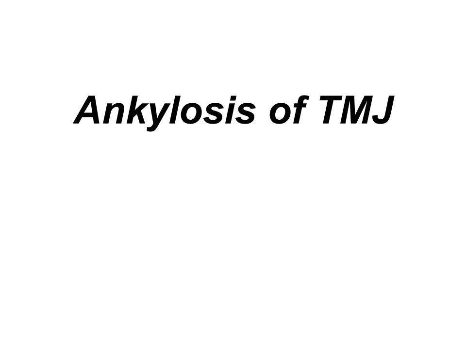 Ankylosis of TMJ