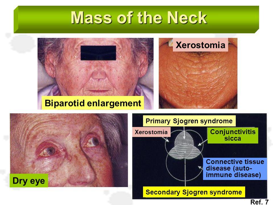 Mass of the Neck Biparotid enlargement Xerostomia Dry eye Primary Sjogren syndrome Secondary Sjogren syndrome Xerostomia Conjunctivitis sicca Connecti