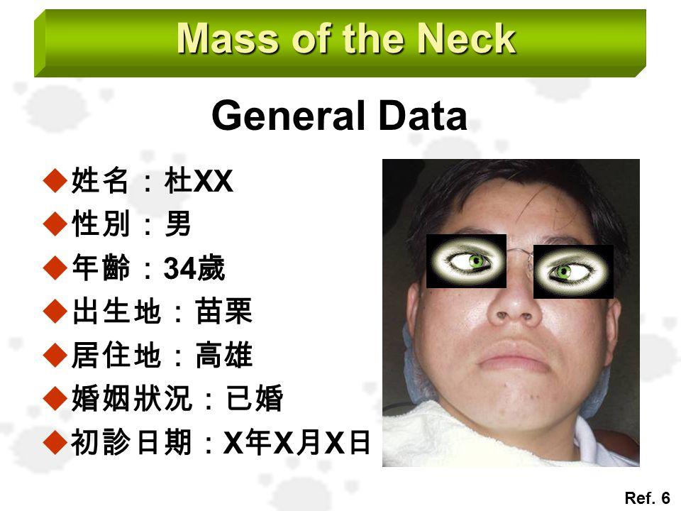 Mass of the Neck General Data  姓名:杜 XX  性別:男  年齡: 34 歲  出生地:苗栗  居住地:高雄  婚姻狀況:已婚  初診日期: X 年 X 月 X 日 Ref. 6