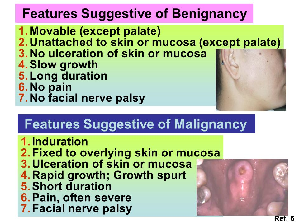 Features Suggestive of Benignancy 1.Movable (except palate) 2.Unattached to skin or mucosa (except palate) 3.No ulceration of skin or mucosa 4.Slow gr