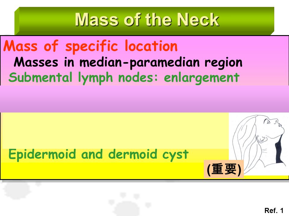 Mass of the Neck Mass of specific location Masses in median-paramedian region Submental lymph nodes: enlargement - Infection: lymphoid hyperplasia : a