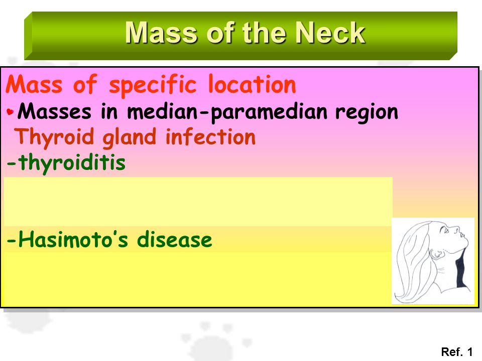 Mass of the Neck Mass of specific location Masses in median-paramedian region Thyroid gland infection -thyroiditis Acute suppurative inflammation, iod