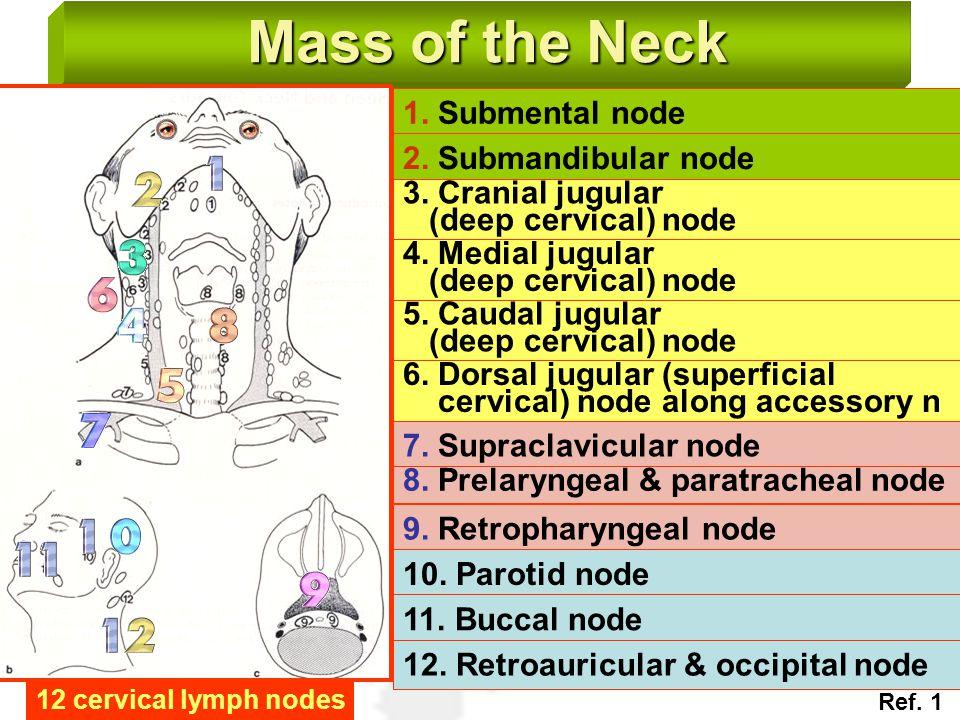 Mass of the Neck 1. Submental node 2. Submandibular node 3. Cranial jugular (deep cervical) node 4. Medial jugular (deep cervical) node 5. Caudal jugu