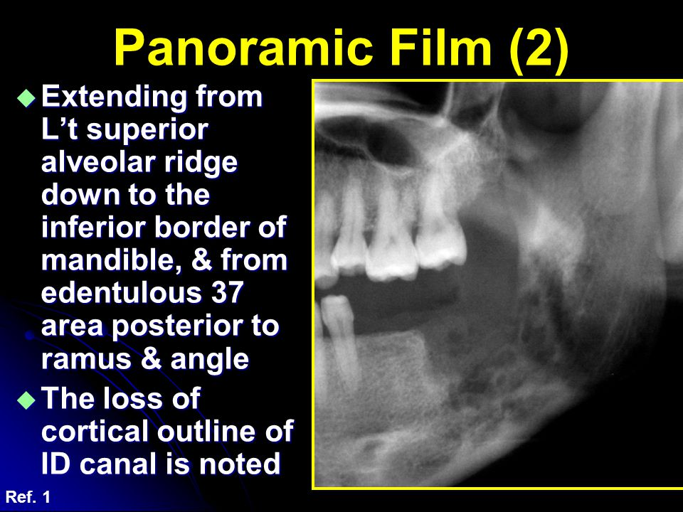  Extending from L't superior alveolar ridge down to the inferior border of mandible, & from edentulous 37 area posterior to ramus & angle  The loss
