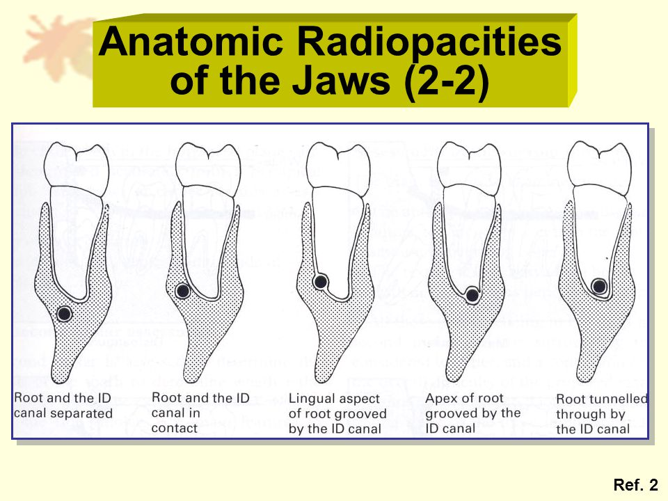 Anatomic Radiopacities of the Jaws (2-2) Ref. 2