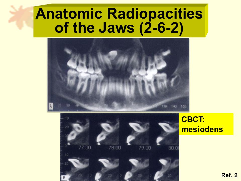 Anatomic Radiopacities of the Jaws (2-6-2) Ref. 2 CBCT: mesiodens