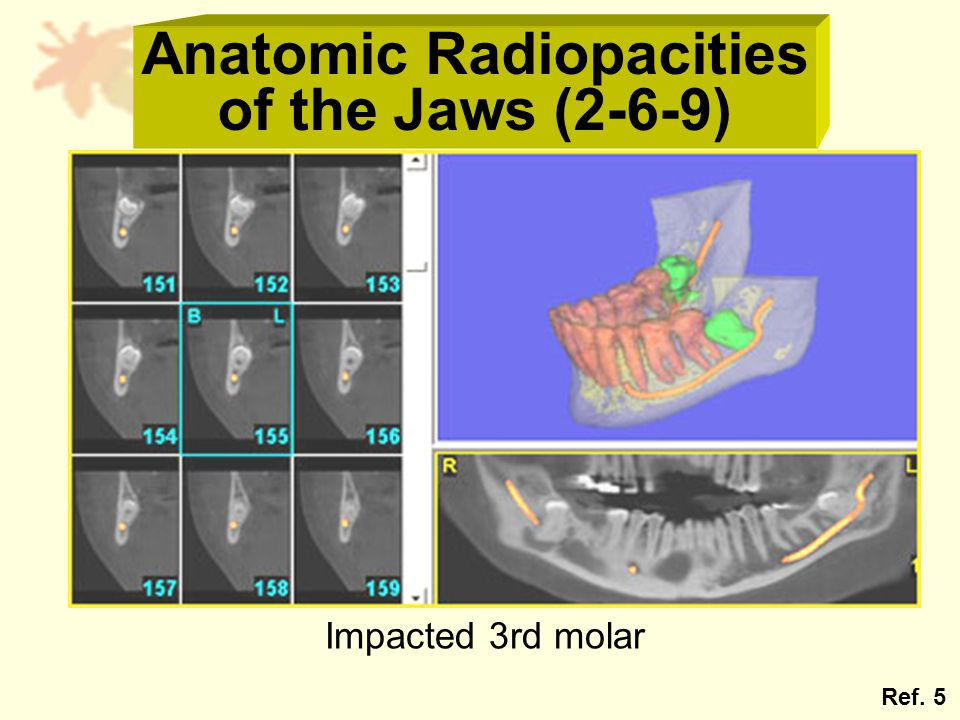 Anatomic Radiopacities of the Jaws (2-6-9) Impacted 3rd molar Ref. 5