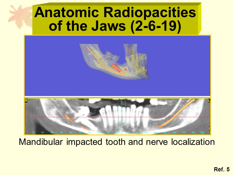 Anatomic Radiopacities of the Jaws (2-6-19) Mandibular impacted tooth and nerve localization Ref. 5