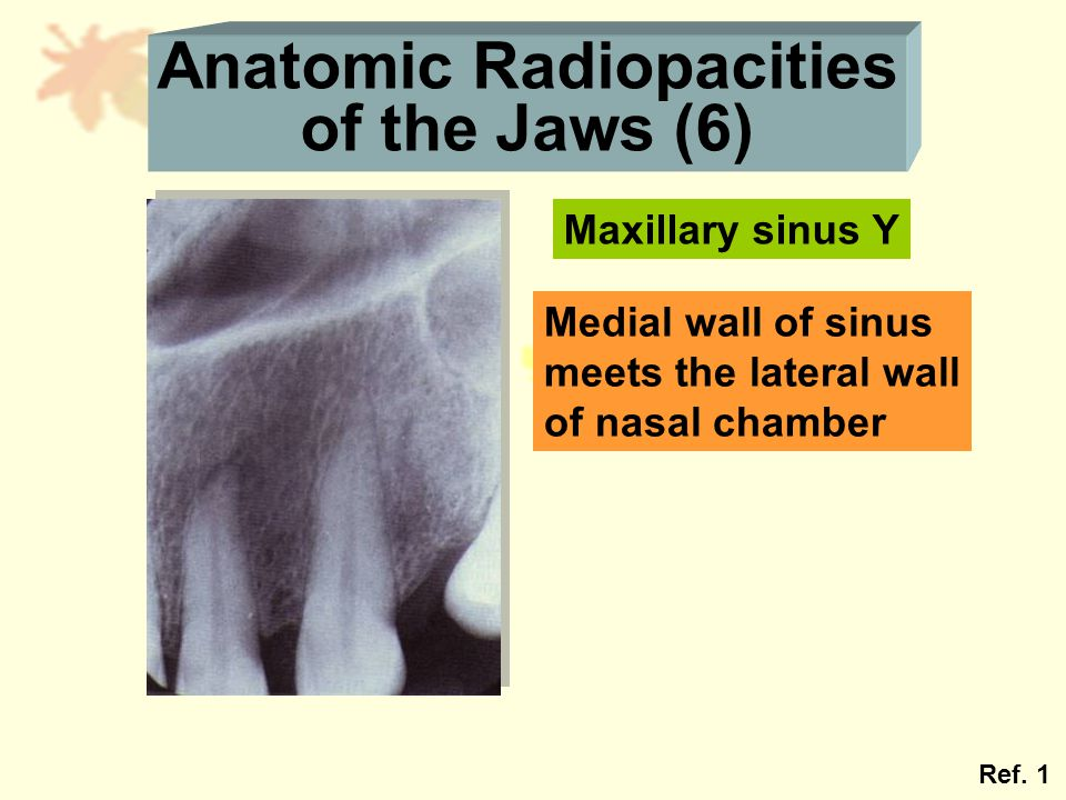 Anatomic Radiopacities of the Jaws (6) Maxillary sinus Y Medial wall of sinus meets the lateral wall of nasal chamber Ref. 1