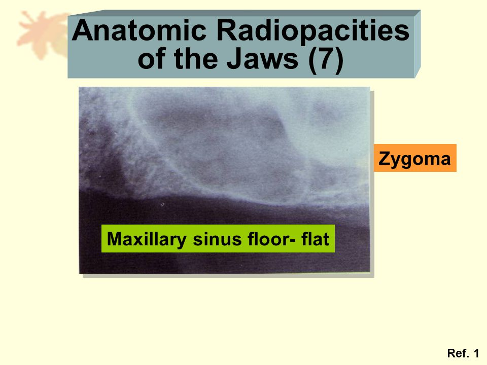 Anatomic Radiopacities of the Jaws (7) Maxillary sinus floor- flat Zygoma Ref. 1