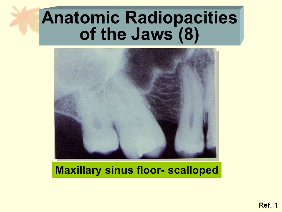 Anatomic Radiopacities of the Jaws (8) Maxillary sinus floor- scalloped Ref. 1