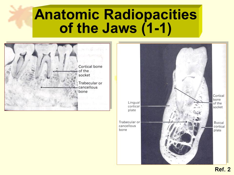 Anatomic Radiopacities of the Jaws (1-1) Ref. 2