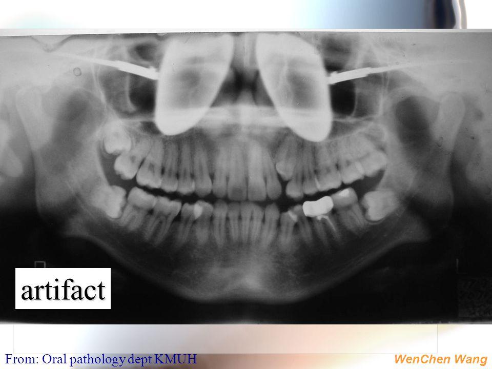 WenChen Wang artifact From: Oral pathology dept KMUH