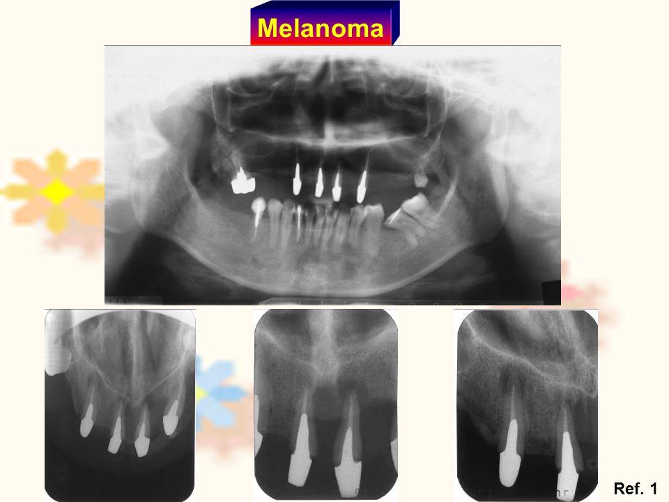 Melanoma Ref. 1