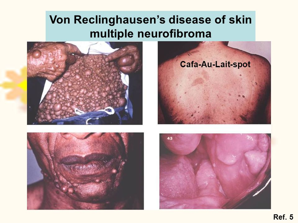 Von Reclinghausen's disease of skin multiple neurofibroma Cafa-Au-Lait-spot Ref. 5