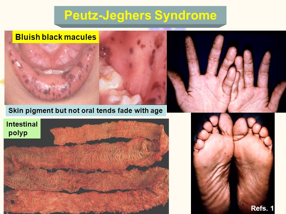 Peutz-Jeghers Syndrome Bluish black macules Skin pigment but not oral tends fade with age Intestinal polyp Refs.
